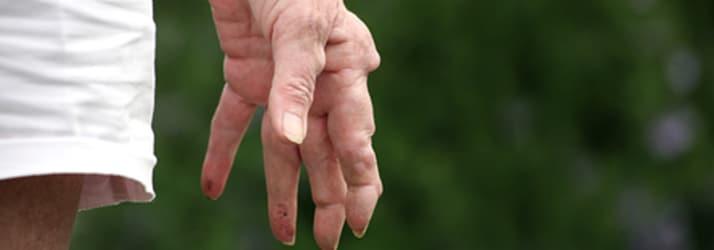 Arthritis in Fairfield CT
